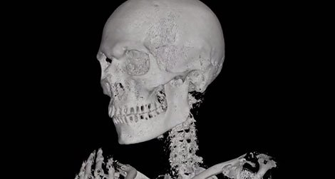 20110913092004ATM-mummy-CT-scan-470.jpg