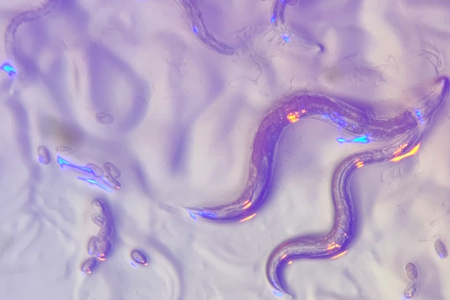 A photo of nematodes viewed under a microscope where they appear purple