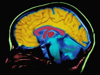 Repeated in pop culture for a century, the notion that humans only use 10 percent of our brains is false. Scans have shown that much of the brain is engaged even during simple tasks.