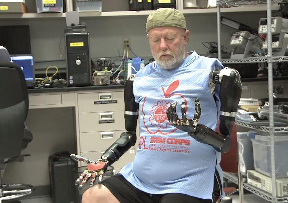 Baugh's robotic arms