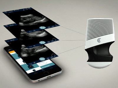 Clarius is the first ultrasound developer to go wireless, pairing its handheld device with a smartphone.