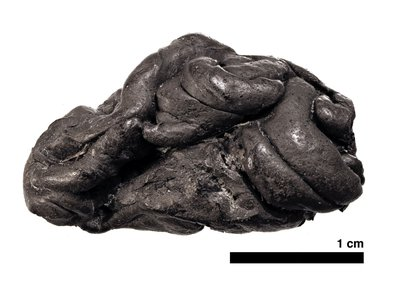 A 5,700-year-old piece of birch tar, chewed as gum, contains the genome, mouth microbes, and even dietary information about its former chewer.