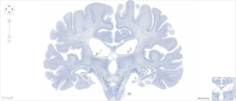 A Postmortem of the Most Famous Brain in Neuroscience History