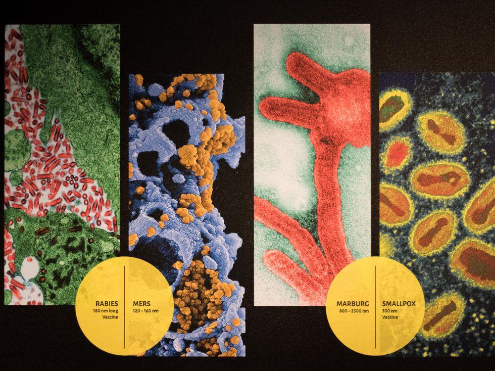 Rabies, Mers, Marburg, Smallpox