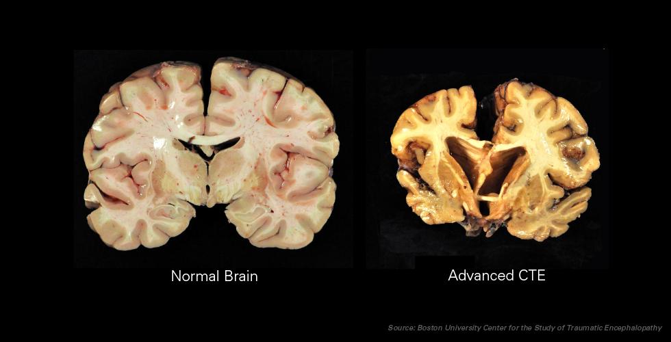 CTE Brains