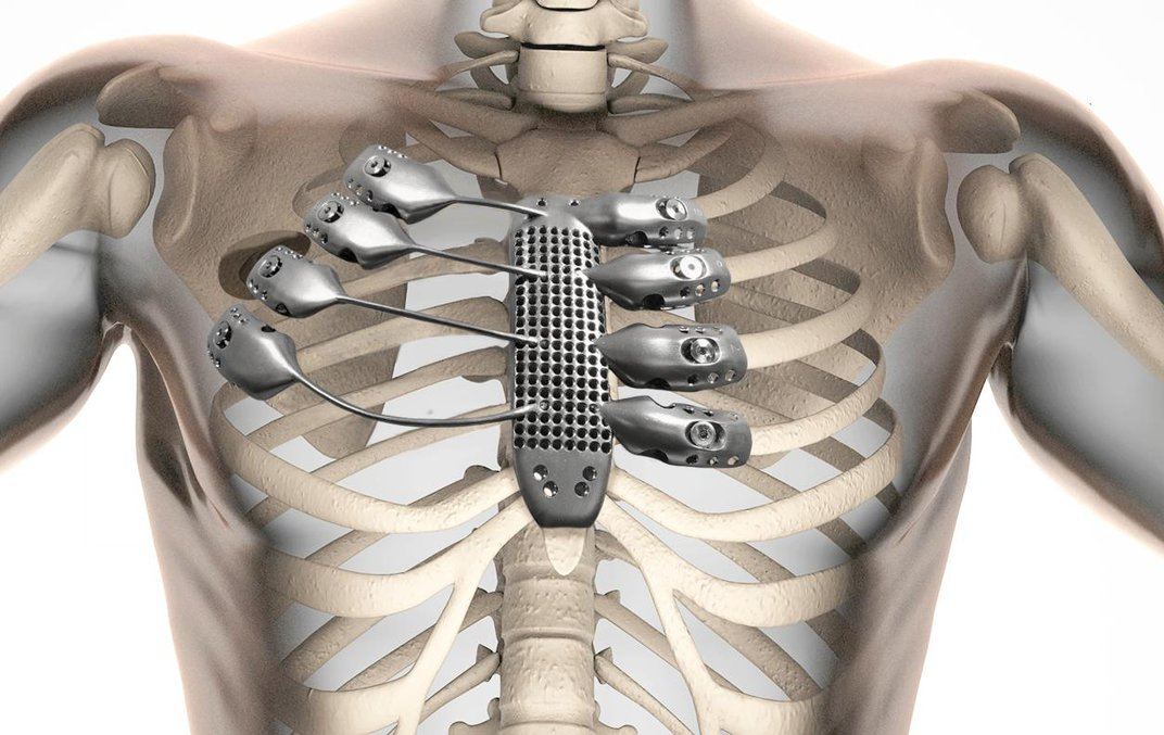 We Can Now 3D Print Ribs