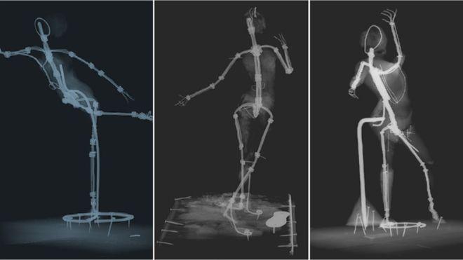 Degas X-rays