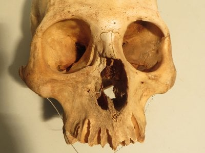 The cranium of an adult male, likely 25 to 30 years old, shows healed trauma affecting the upper jaw. The injury was probably caused by a punch from another individual in a fight.