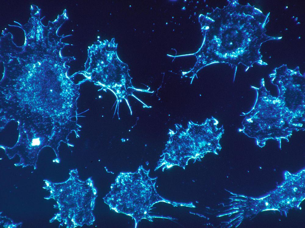 Cancer_cells_(1).jpg