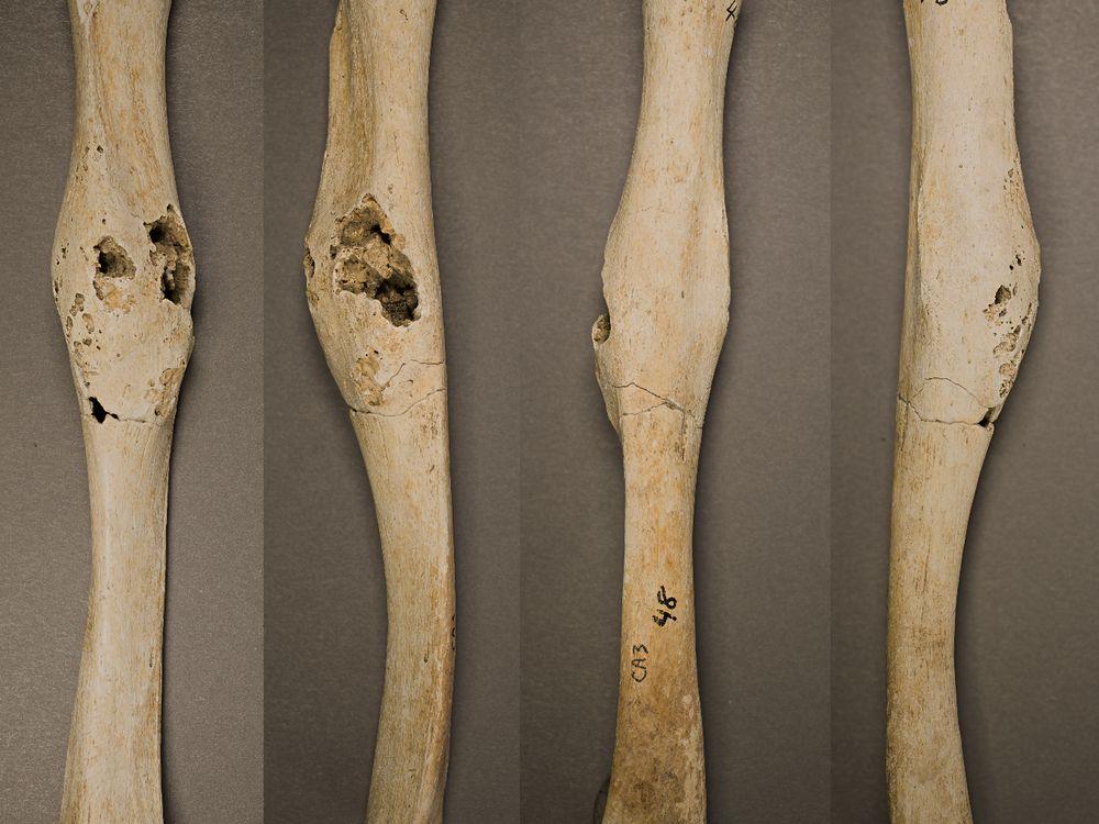 Right humerus bone