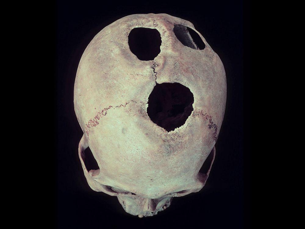Cuzco-Skull.jpg