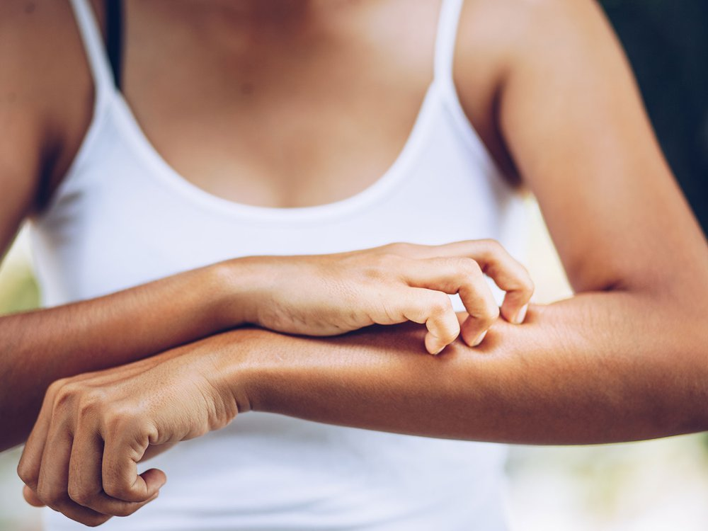 Chronic Itching