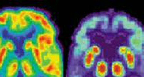 The brain scan on right shows Alzheimer's damage.