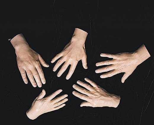 Five of a series of ten plaster hand cast created by brain surgery pioneer Harvey Cushing of his surgical peers, 1920s
