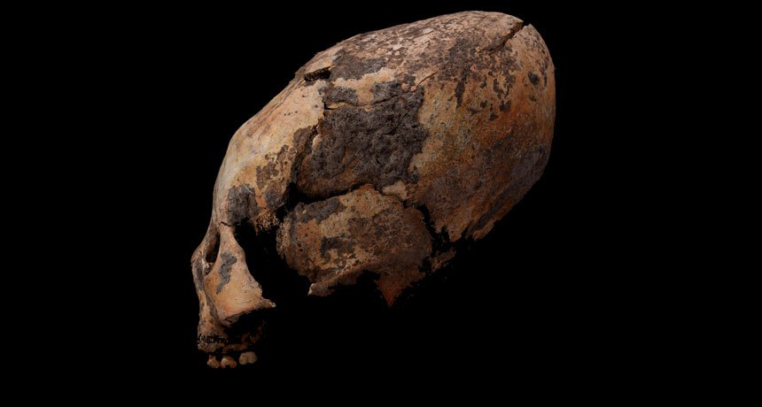 Ancient Chinese Graves Reveal Evidence of Early Skull Reshaping