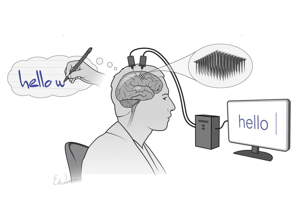 """An illustration shows a man thinking about typing """"hello w..."""" and he has electrical devices connecting his brain to a computer, which displays the word """"hello"""""""