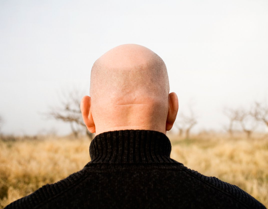 Do Other Animals Besides Humans Go Bald?
