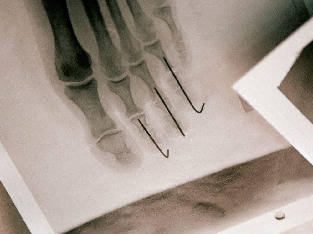 body-modification-foot-x-ray.jpg