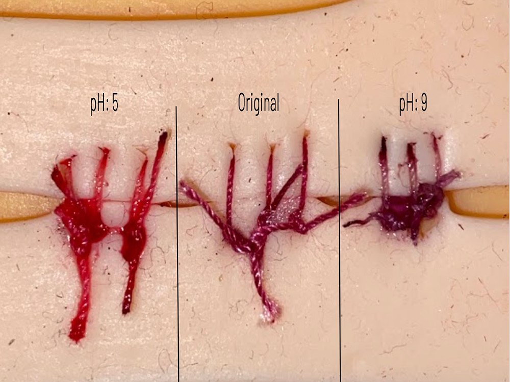 This High Schooler Invented Color-Changing Sutures to Detect Infection
