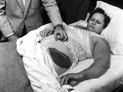 """In the hubbub after the meteorite strike, Ann Hodges became a minor celebrity. Photographs of her bruise and the damage to her home appeared in Life magazine in an article entitled, """"A Big Bruiser From the Sky."""""""