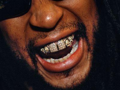$50,000 platinum grill worn by rapper Lil Jon
