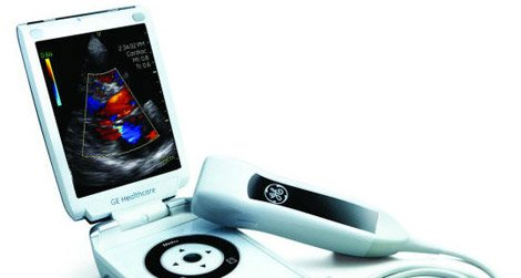 Reverse innovation in action: An ultrasound scanner shrinks to smartphone size.