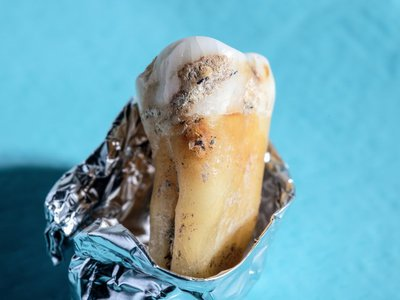 A close-up of fossilized plaque on an ancient human tooth.