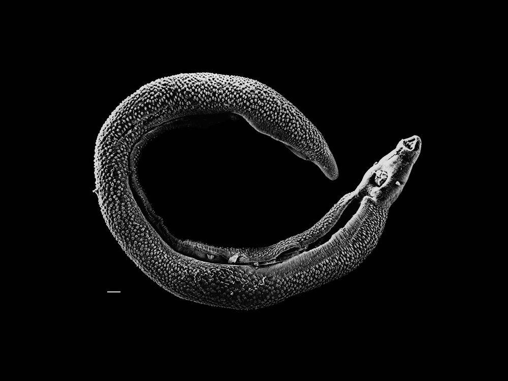 Schistosoma_20041-300.jpg