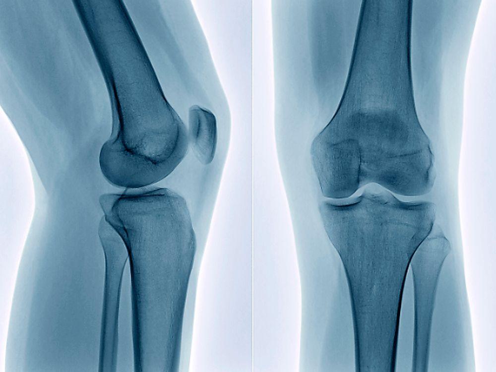 Knee Bone