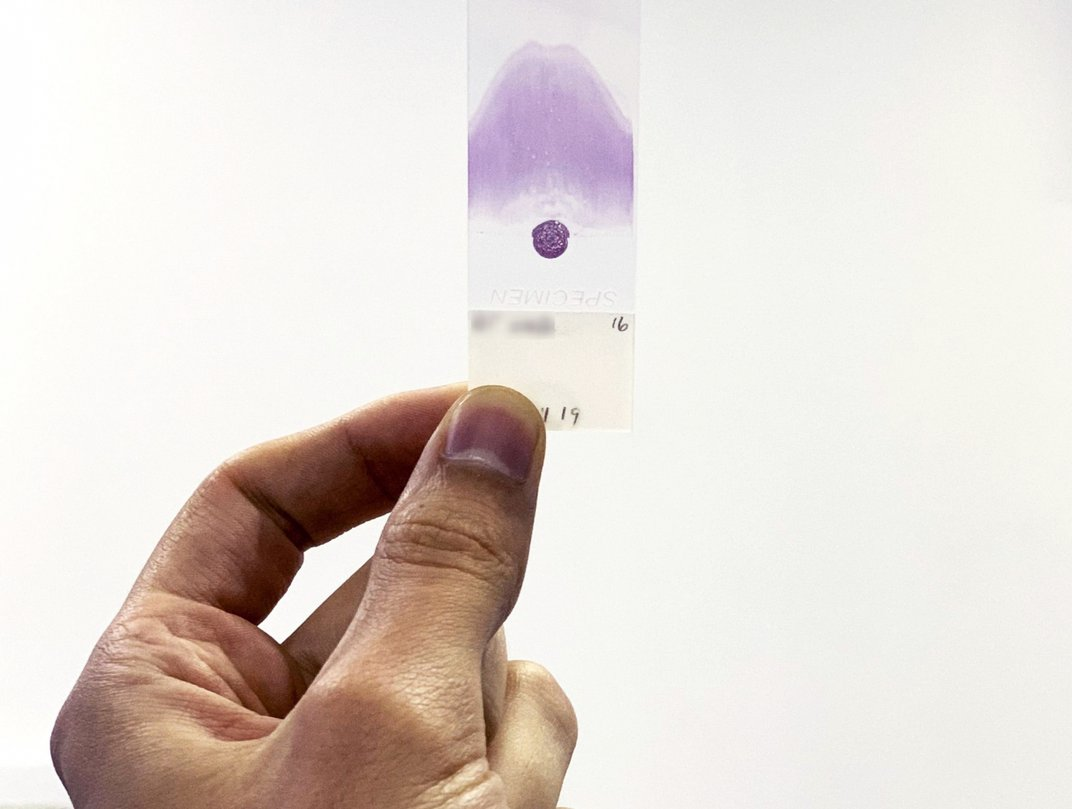 A close-up of a blood smear on a microscope slide that has been stained to be examined under high magnification.