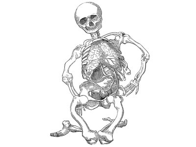 Rickets, a disease caused by vitamin D deficiency that results in skeletal deformities, has been traced back to the Roman Empire.