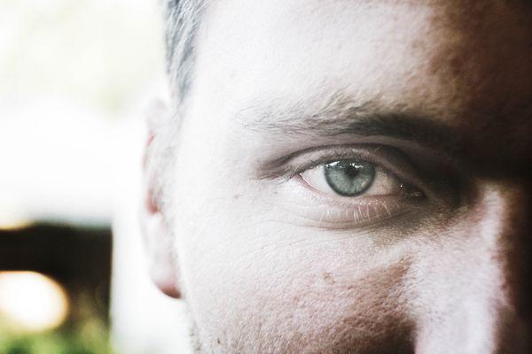My husband's eye thumbnail