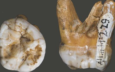 The molar tooth of a Denisovan